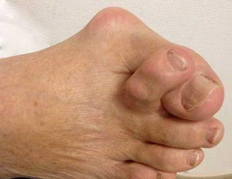 lehet-e futtatni a bokaízület artrózisával