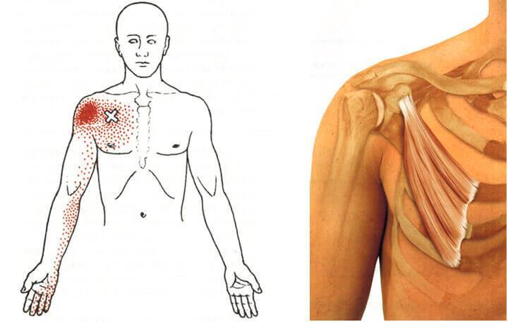 az izmok a test bal oldalán fájnak)