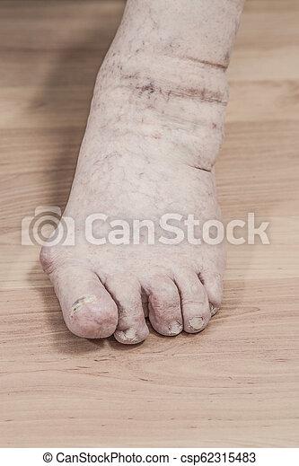 ízületi fájdalom láb)