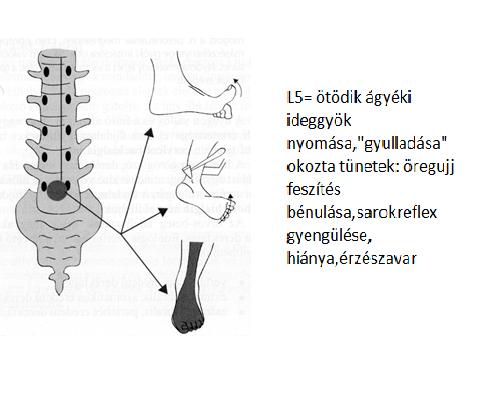 gerincvelő gerincvelő tüneteinek kezelése)