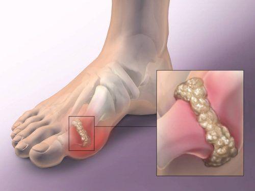 a lábak ízületeinek fájdalma és kezelése)
