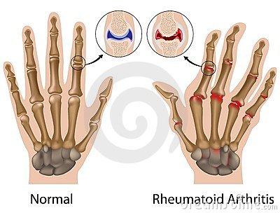 a kéz deformáló ízületi gyulladásának kezelése)