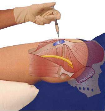 a vállízület mésztartalmú bursitisének kezelése a kéz ízületei fájnak a hidegtől