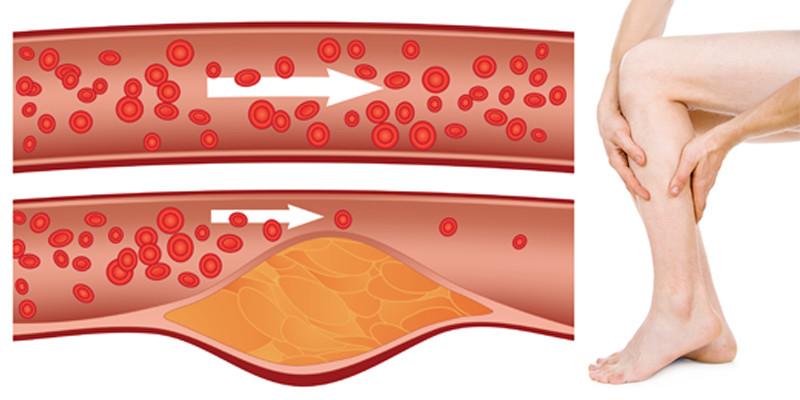 hogyan lehet kezelni az alsó végtagok erek artrózisát)