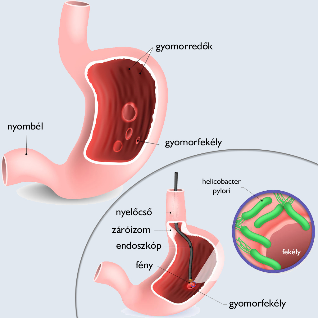 Angina, rekedtség, felső léguti fertőzések - Diagnózis leírása