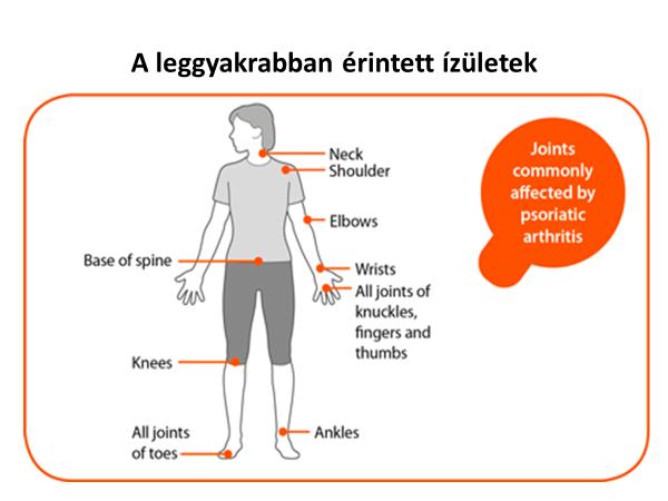ízületek polyarthritis hogyan kezelhető