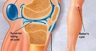 csípő-gonarthrosis kezelés)