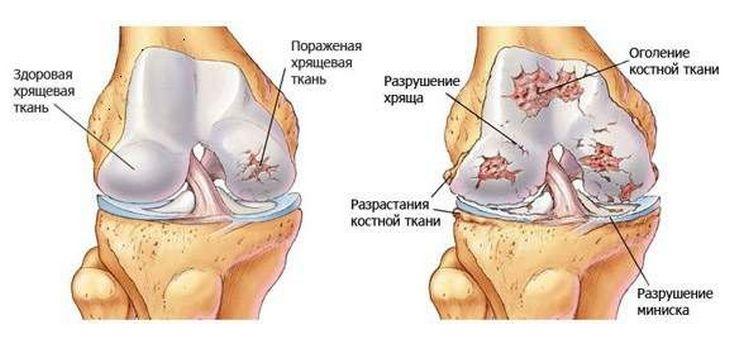 kondroxid kenőcs ízületi fájdalmak esetén)