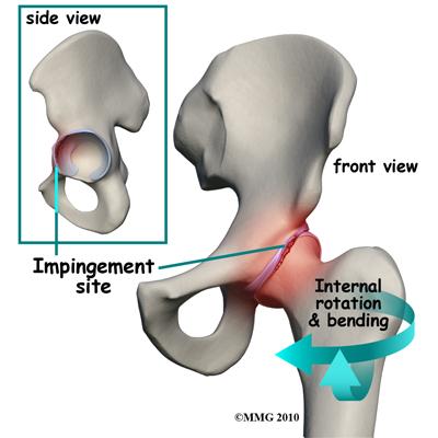 a nyaki és a csípőízület fájdalma