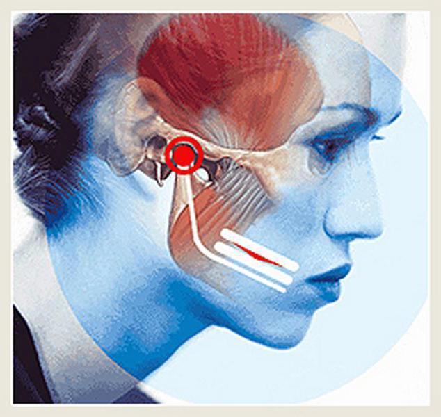 posztraumás deformáló artrózis kezelés