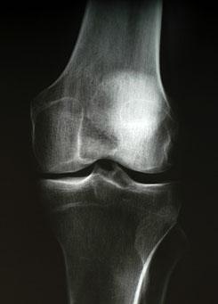 kórtörténet térd artrózisa)