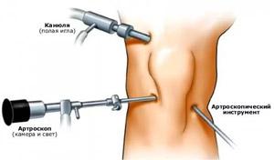 a térdízület 1. fokozatának gonarthrosis kezelése