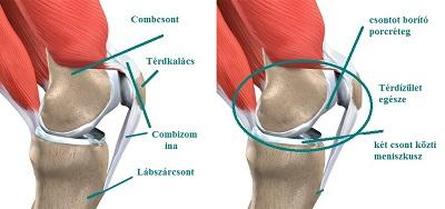 kenőcsök áttekintése az osteochondrosisról hogyan állíthatjuk le a térd artrózisának kialakulását