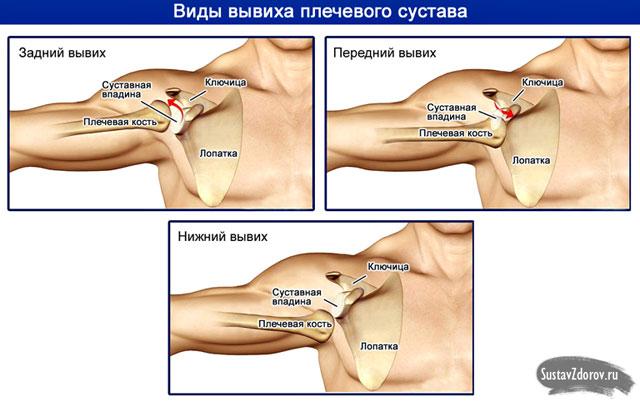 váll fájdalom diszlokáció után