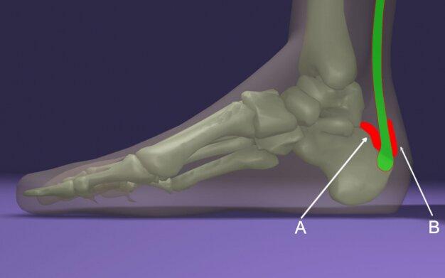 Achilles-ín gyulladás – Okok, tünetek és kezelés | BENU Gyógyszertárak