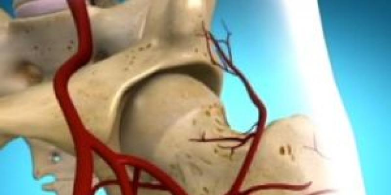fájdalom a csípőízület aszeptikus nekrózisával)