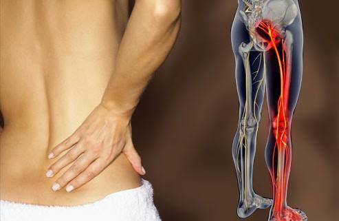 idegszál gyulladás derékfájás a nők osteochondrozisának gyógyszerei