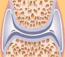 teraflex ízületi kezelés gélek ízületi és izomfájdalmak esetén