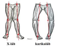 a bal láb artrózisának kezelése)