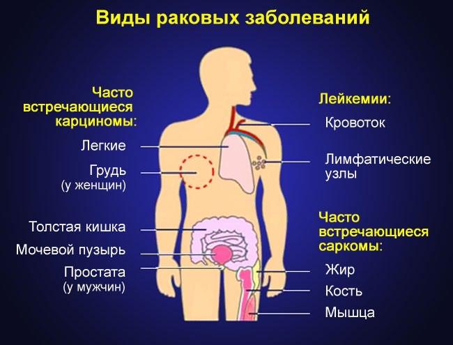 a boka deformáló artrózisa osteoarthrosis)