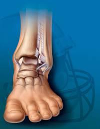 Bokasérülések, bokaszalag szakadás, bokaszalag sérülések - Súlypont Ízületklinika