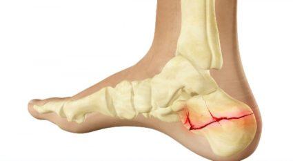 a bokaízület fájdalma a sarok törése után
