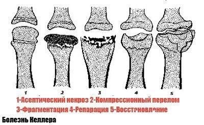 a bokaízület osteochondroze)