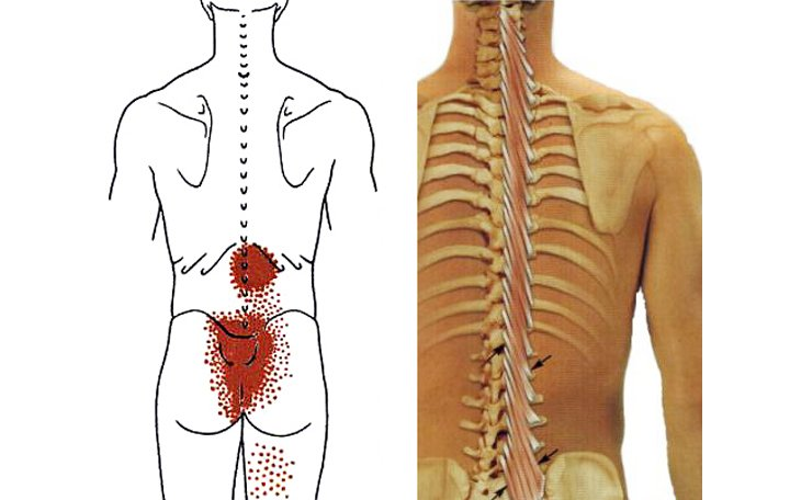 a csigolyák közötti deformáló artrózis)