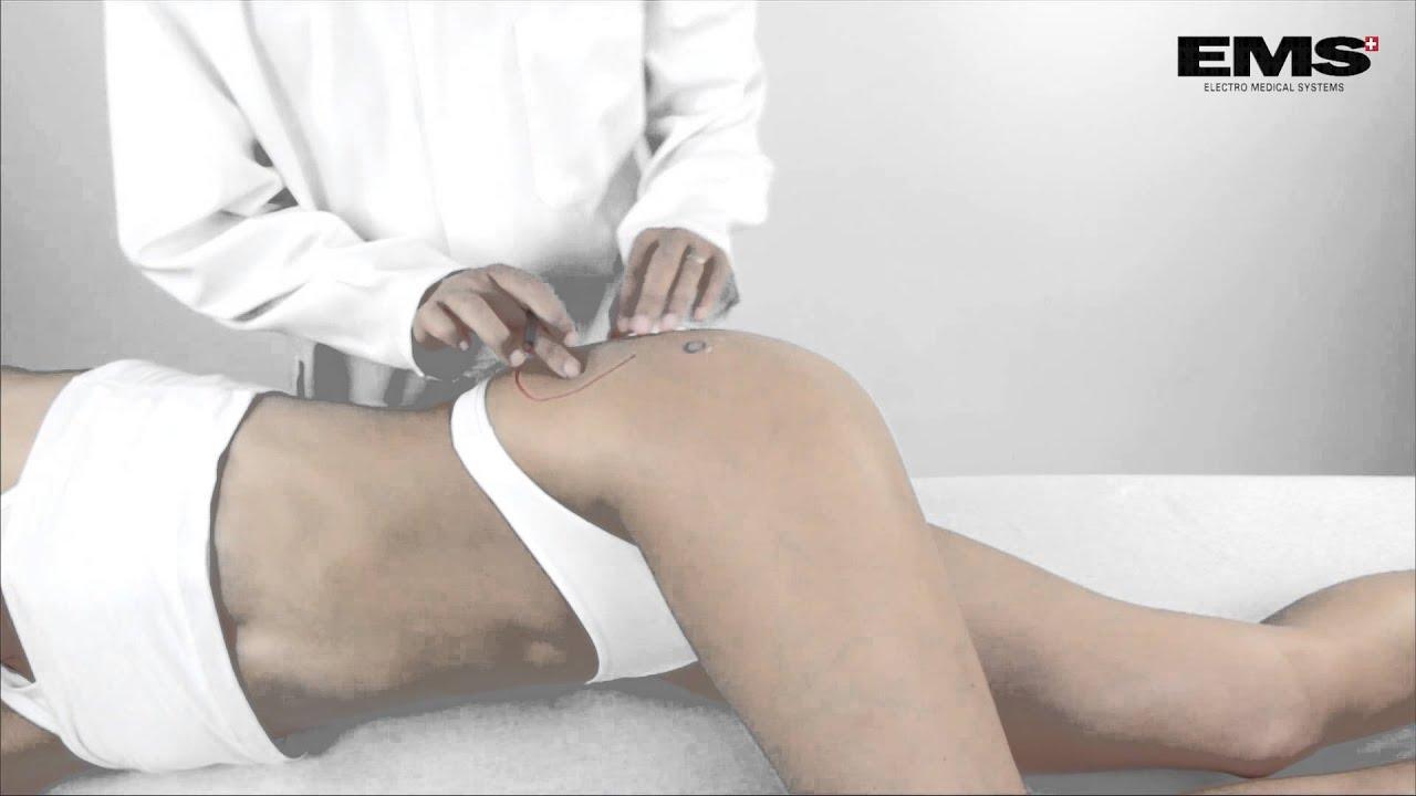 a csípő gerincízületének gyulladása nyugalomban a csípőízület fáj