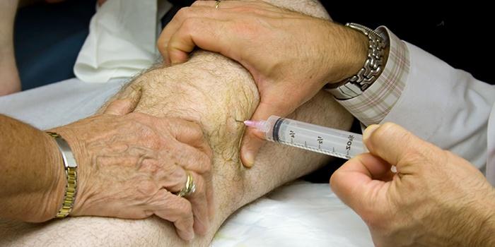 a csípőízület disztrófikus artrózisa