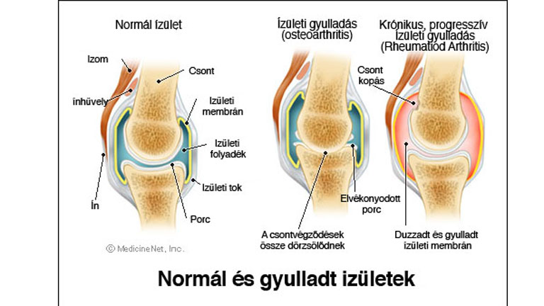 vitaminhiány ízületi fájdalom osztályok a lépcsőn térdízület artrózisával