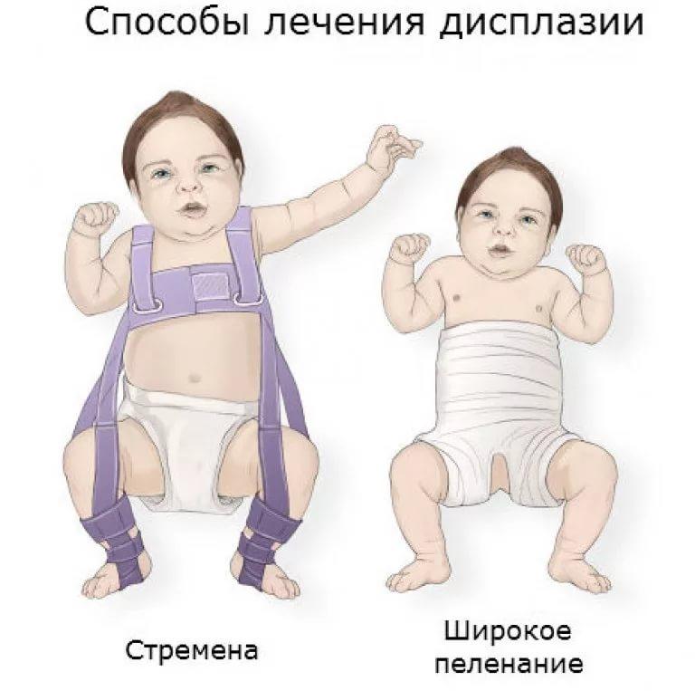 a csípőízületek veleszületett diszlokációja)
