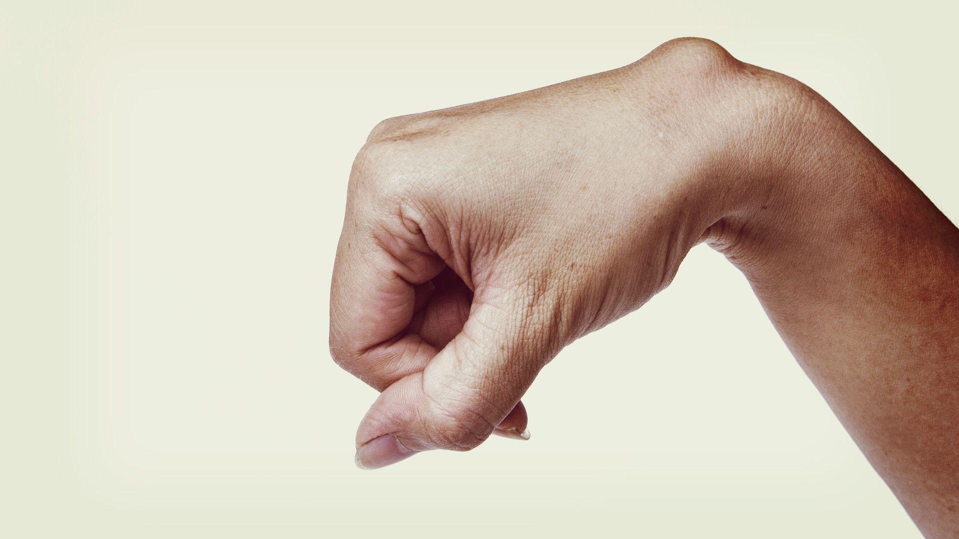 a csuklóízület egy dudorra fáj