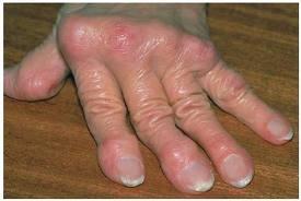 a kezdeti rheumatoid arthritis kezelése