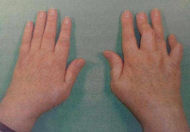 a kezek phalangealis ízületi gyulladása és kezelése)