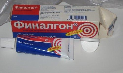 a könyökízület lágyszöveti fájdalma)