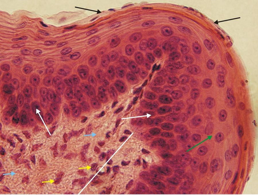 A tüdőfibrózis és tünetei
