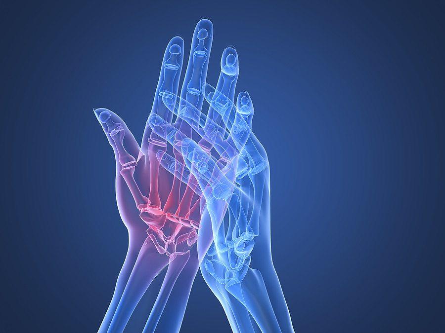 a kéz ízületi kezelése hatékony kezelés)