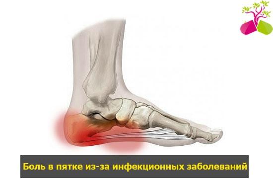 a lábak ízületeinek duzzanatának oka