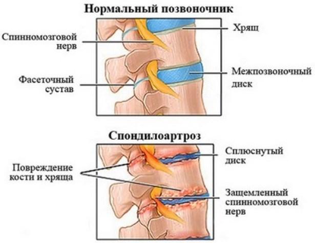 a legerősebb fájdalomcsillapító az oszteokondrozisra