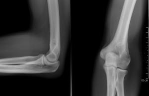a nagy lábujj bal ízületének fájdalma