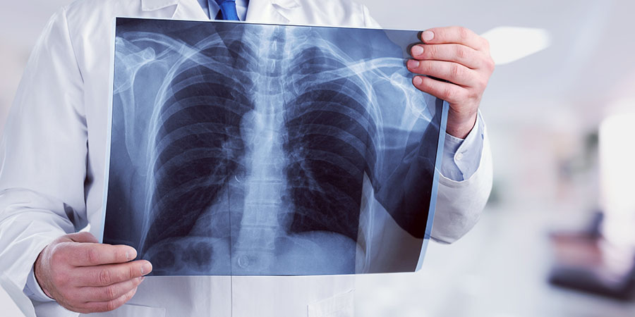 Tüdőgyulladás kezelése