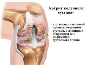 a térdízület szinoviális folyadékának helyreállítása)