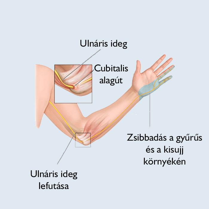 a vállízület fáj, és a kéz zsibbad)