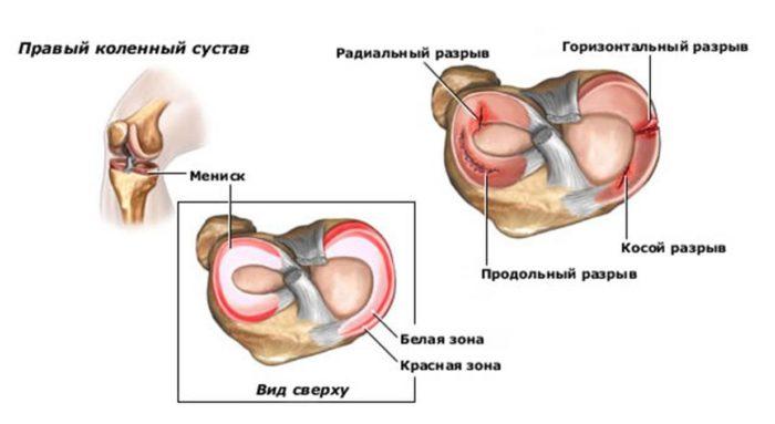 fájhatnak a térdízületek a gerinctől)