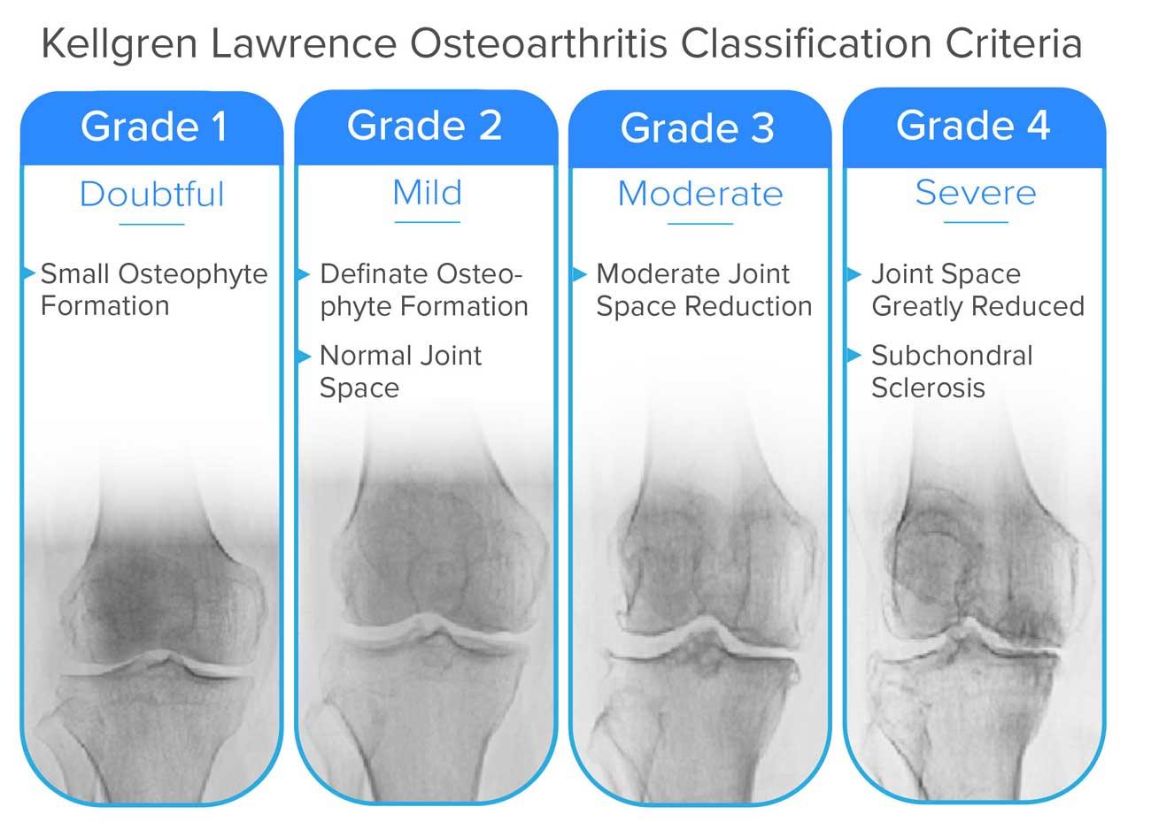 ízületi deformitás osteoarthritis ár
