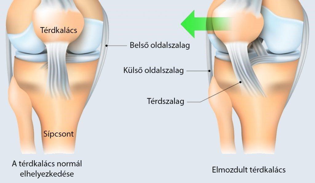térdtörés tünetei, ahol a fájdalom rögzítve van)