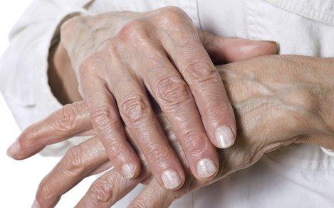a kéz fájdalma kattan az ízületre