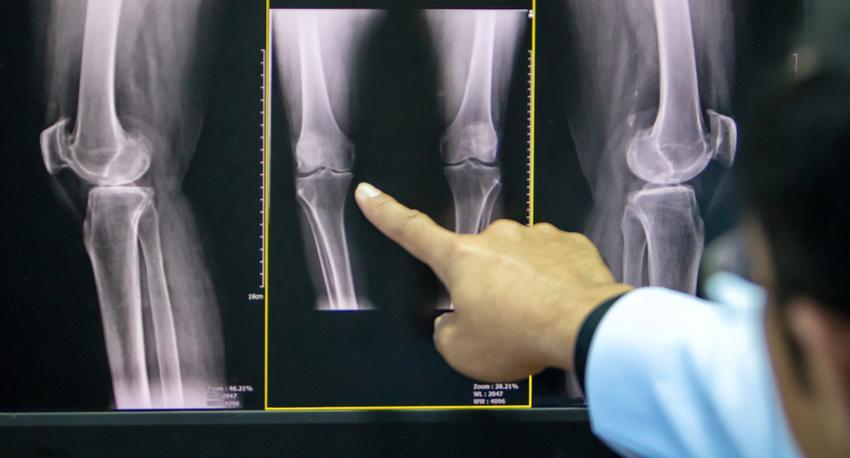 a lábak ízületeinek betegségei térd artrózis)