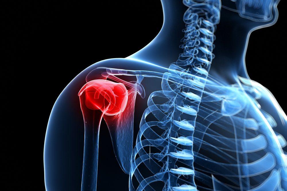 a bal vállízület fájdalma kezelést okoz